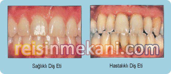 Diş-Eti-Hastalıkları reisinmekani