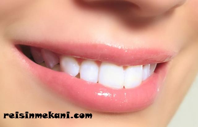 diş hekimi, lamina diş fiyatları, biyolojik uyum