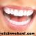 Lamina Diş Fiyatları Neden Birbirinden Farklıdır?