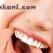 Estetik Diş Hekimliği Dişe Hangi Uygulamaları Yapar?