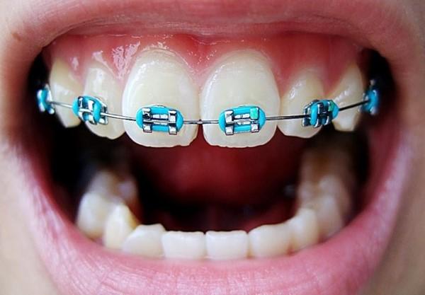 diş teli nasıl takılır, diş teli takıldığında nelere dikkat edilir, diş teli olan kişiler nelere dikkat etmeli