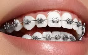 diş teli kalitesi, diş teli fiyatları, diş teli fiyatları ve kalitesi