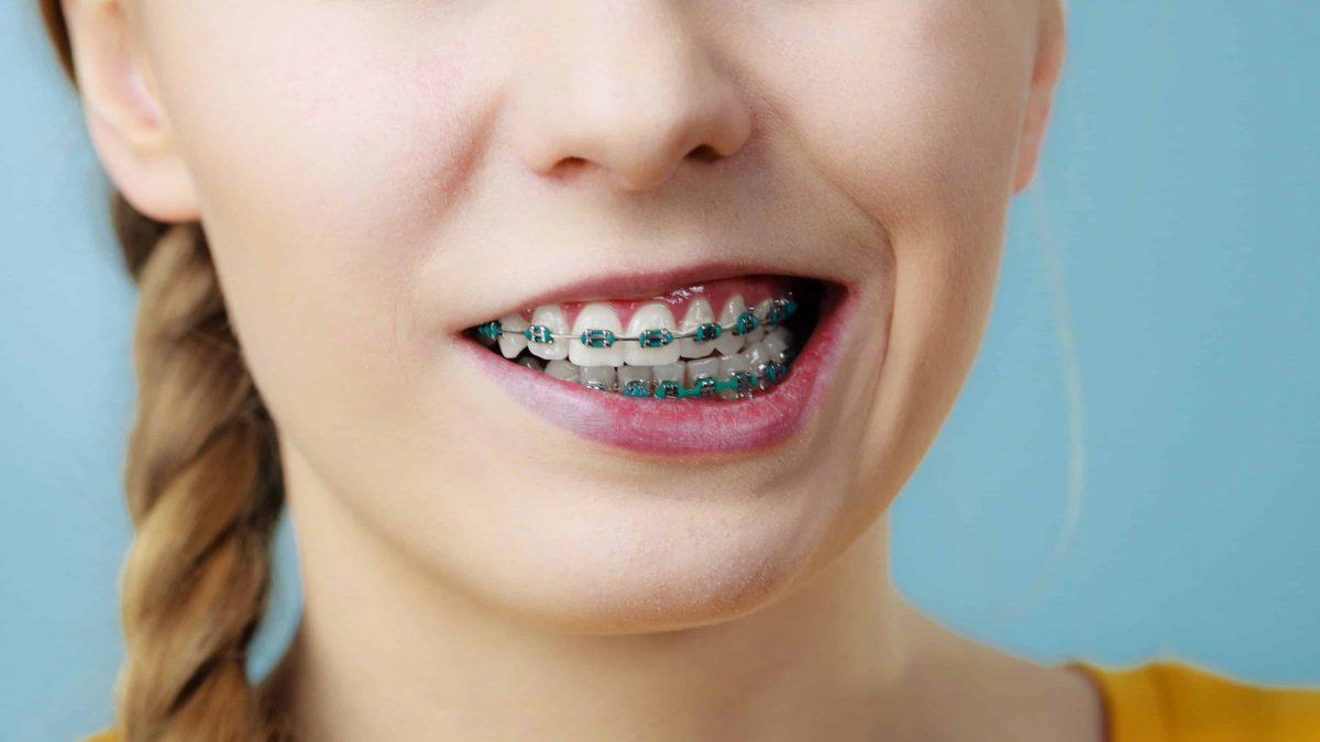 Tedaviye Göre Diş Teli Fiyatları