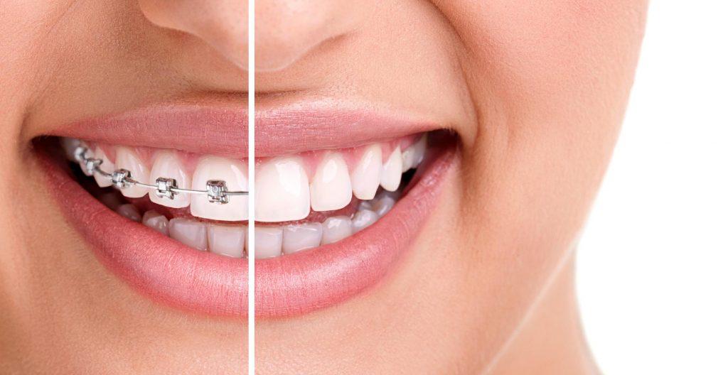 Estetik Diş Teli