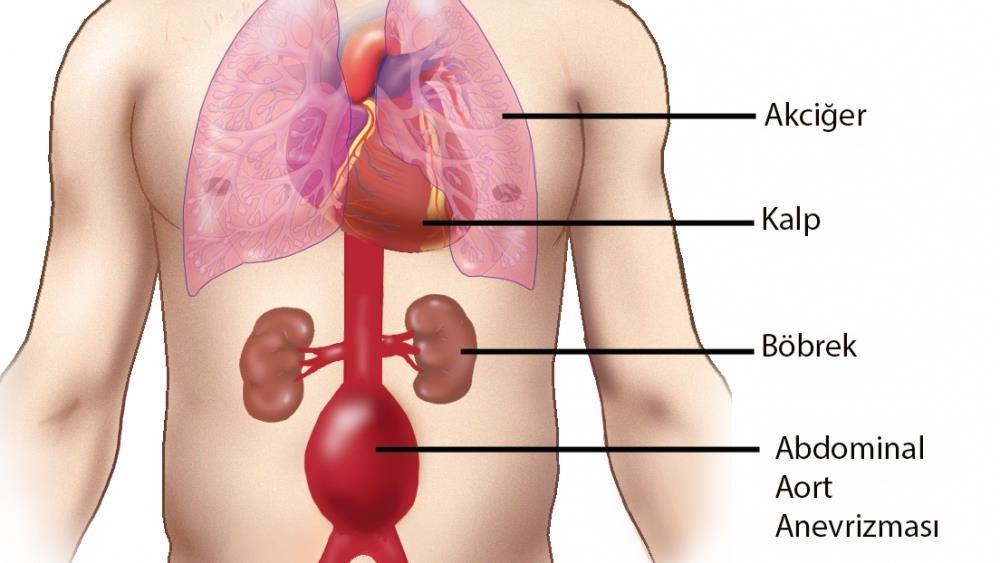 Karın İçi Aort Anevrizmasında Alternatif Tedavi: Endovasküler Cerrahi